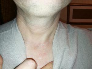 Сколько длится больничный после удаления щитовидной железы