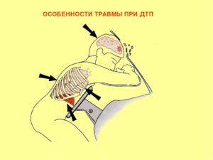 Виды травм при дтп