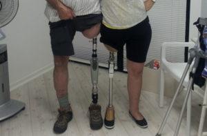 Ампутированы обе ноги выше колена как получить инвалидность в больнице