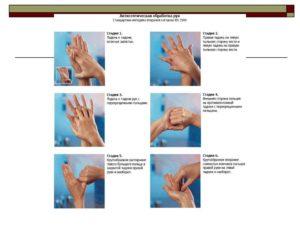 Приказ 798 моз украины обработка рук